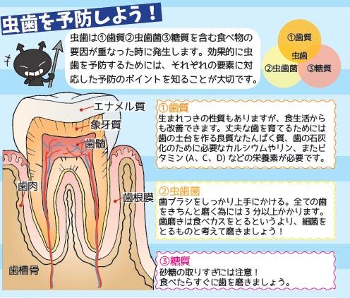 201806_虫歯.jpg